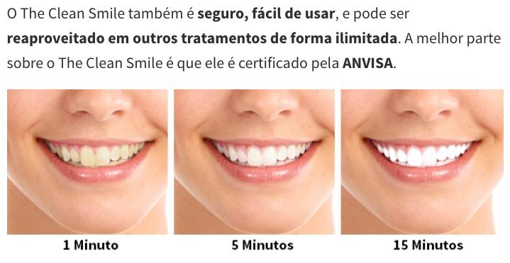 Clareamento Dos Dentes Voce Sabe Como Funciona Beleza Feminina